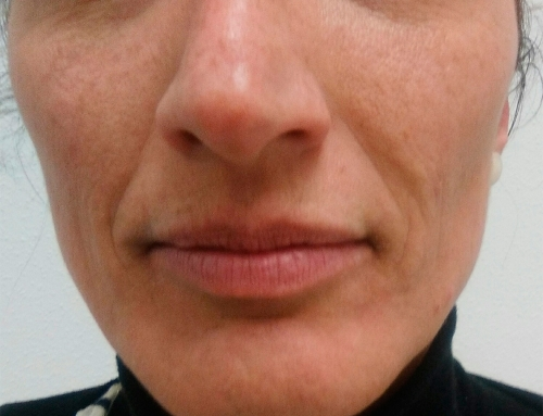 Remodelación de nariz con ácido hialurónico Revanesse
